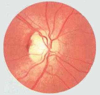 Острая глаукома